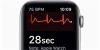 WatchOS 5.2 looks to Europe's ECG. But we still have bad luck in the Czech Republic